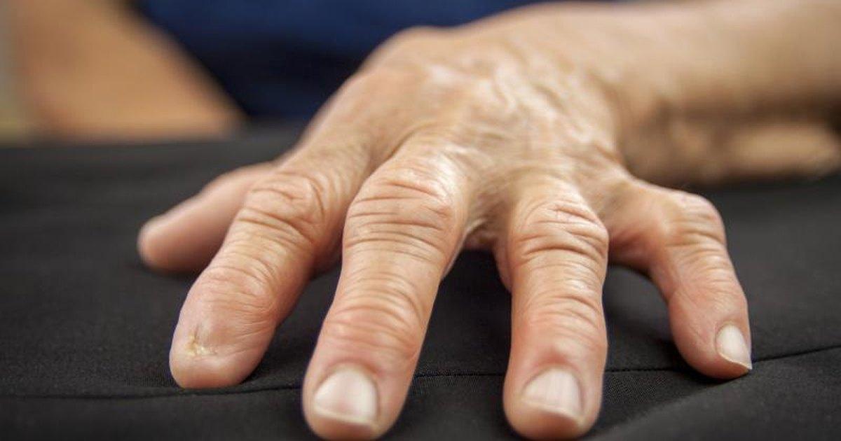 Артрит артроз пальцев рук лечение фото
