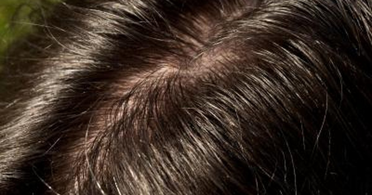 Can Vaseline Be Used For Dry Scalp Livestrong Com