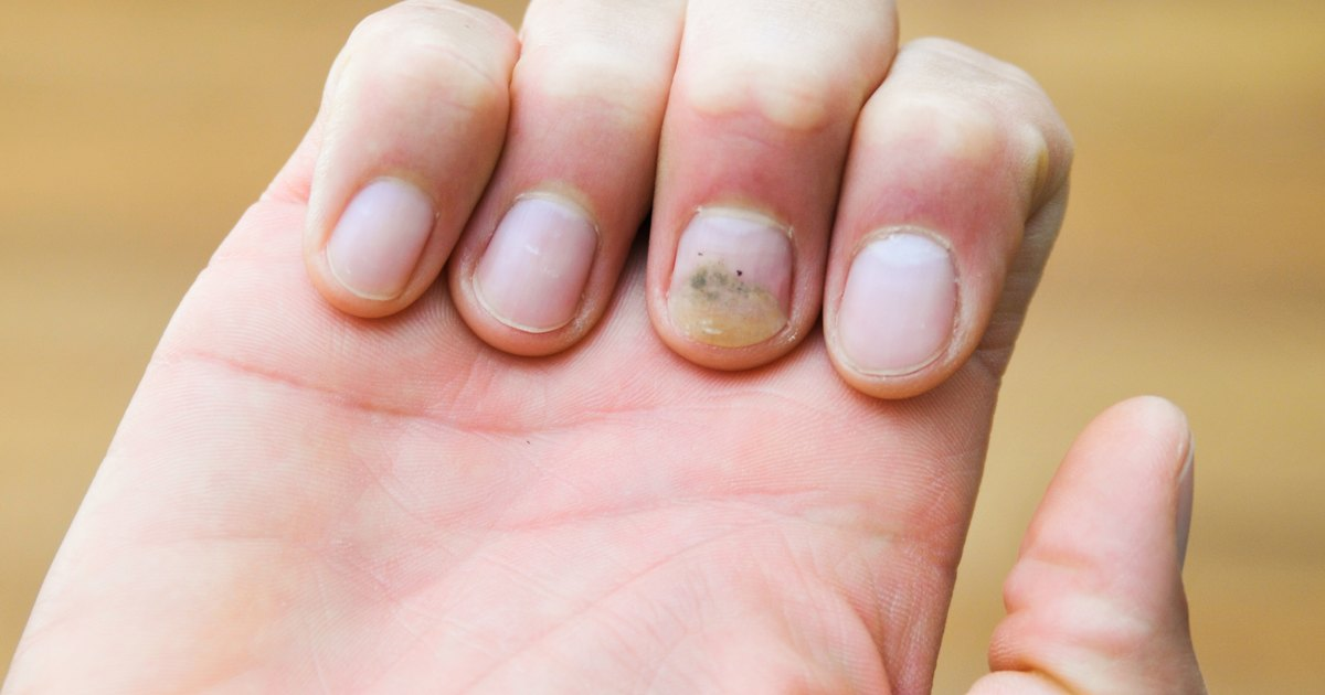 Fungus Nails Natural Treatment