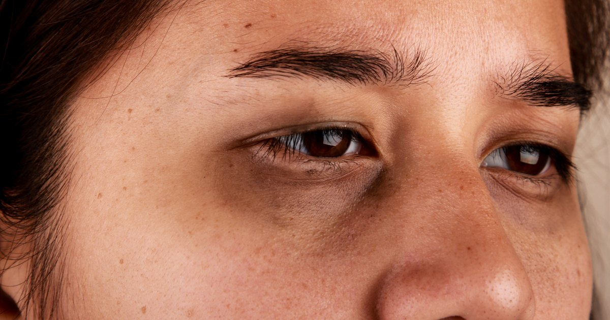What to Eat to Get Rid of Dark Circles | LIVESTRONG.COM