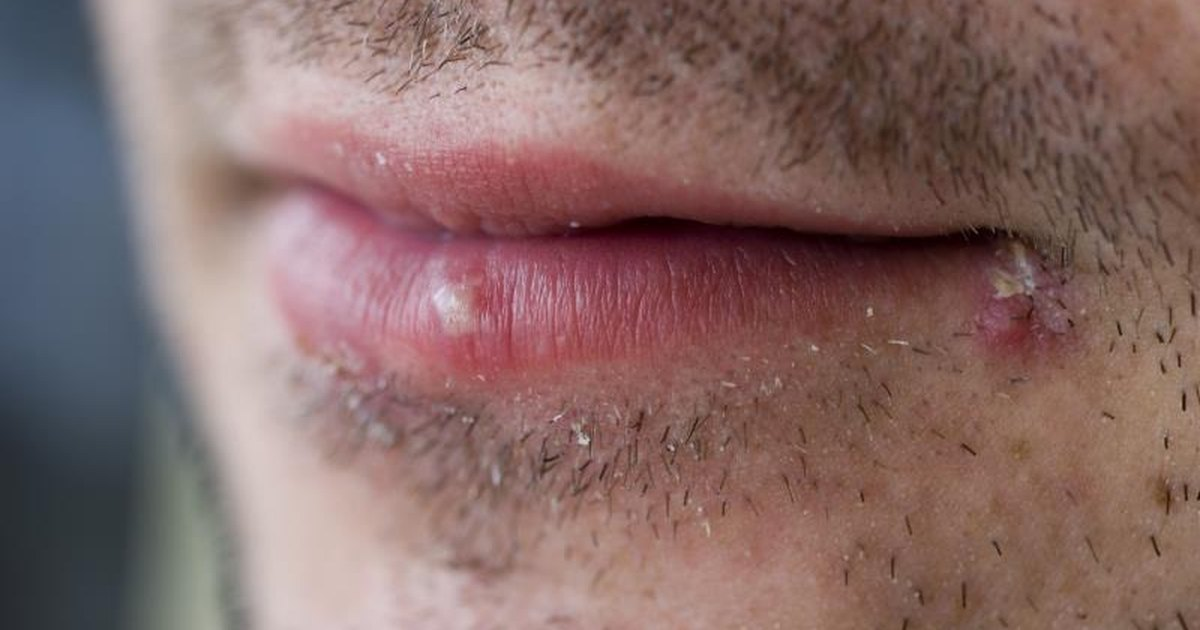 can you use abreva on genital herpes type 1