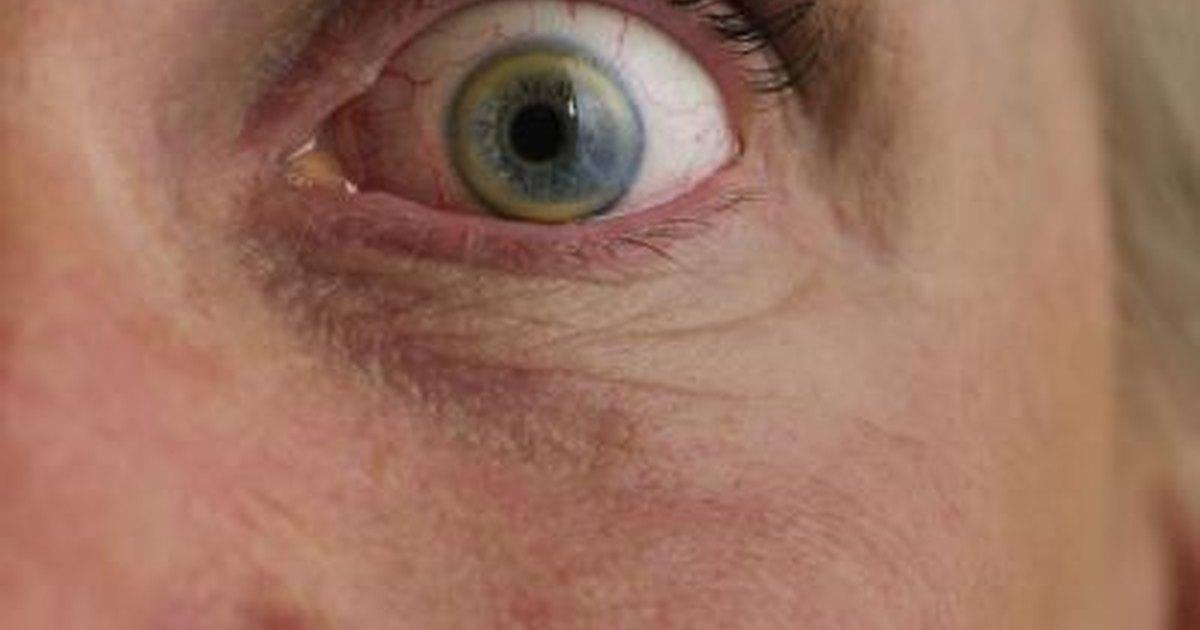 How to Eliminate Dark Sunken Circles Under the Eyes ...