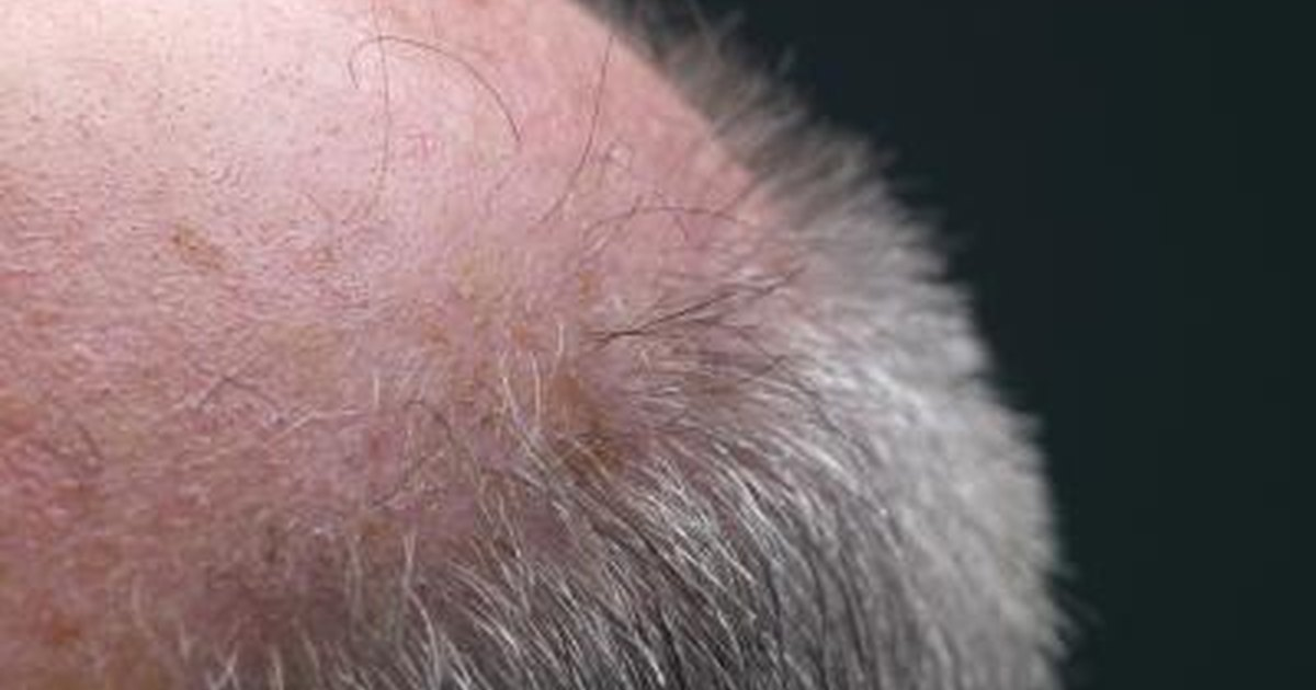 Natural Ways To Regain Hair