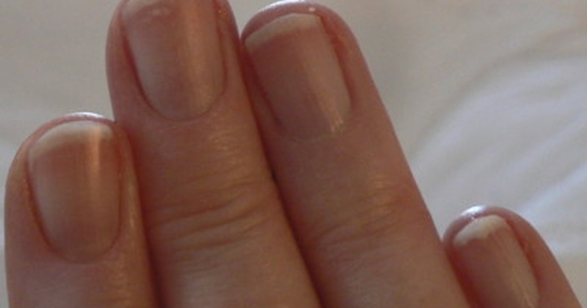 How to Treat Fingernail Fungus | LIVESTRONG.COM