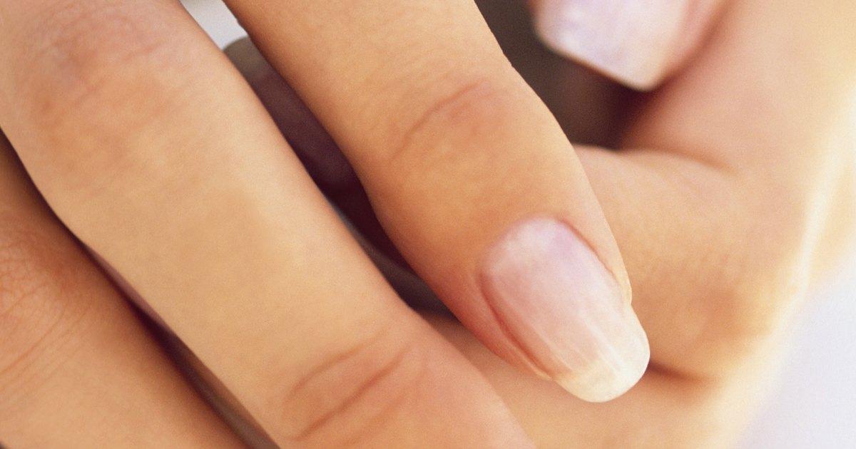 What are the Benefits of Jojoba Oil & Vitamin E for Fingernails ...