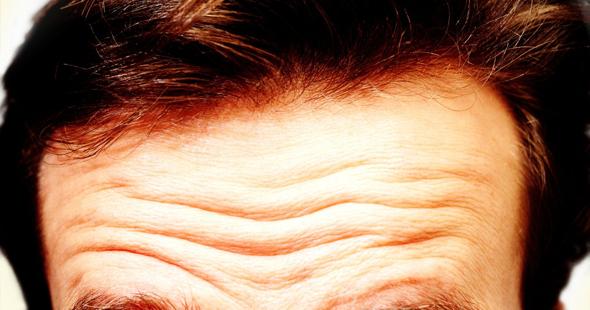 How to Remove Forehead Wrinkles