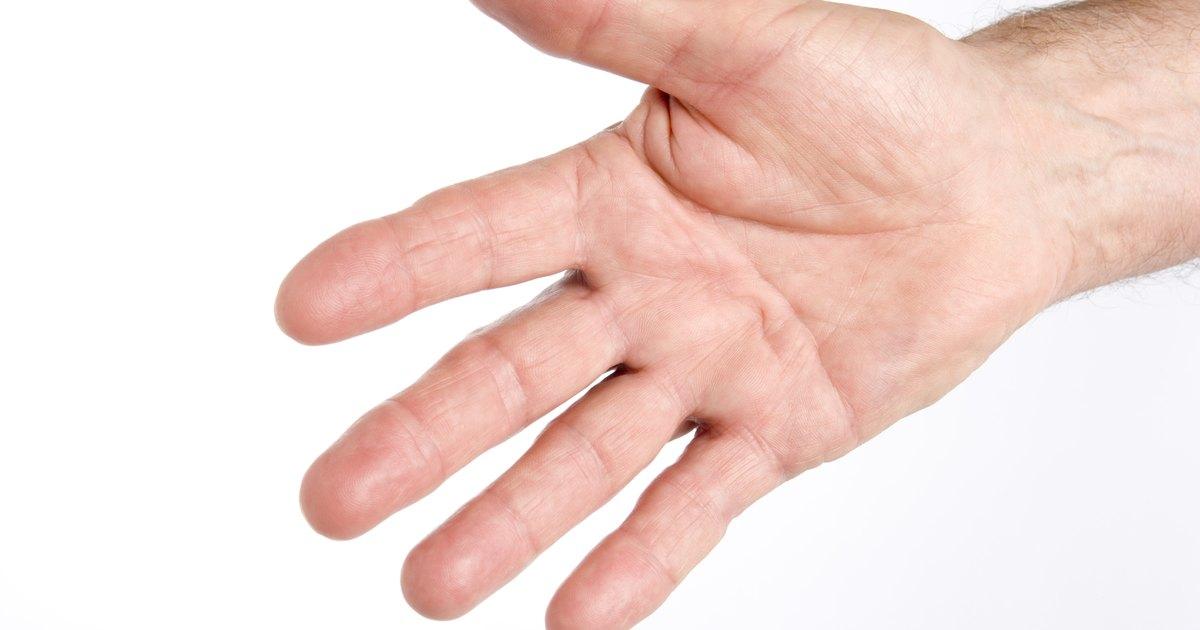 why do my palms peel