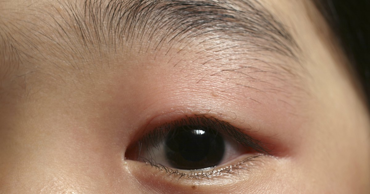 How To Treat A Swollen Eyelid Livestrong Com
