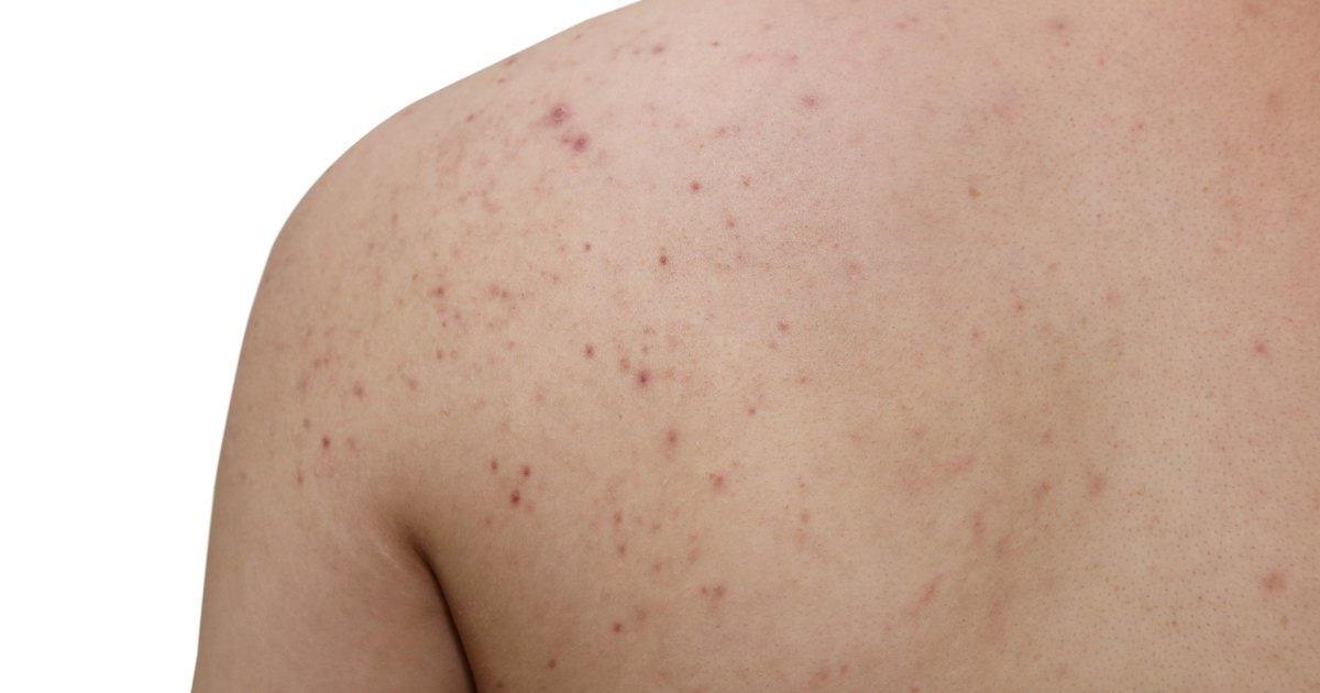 Causes of Acne on the Arms & Back | LIVESTRONG.COM