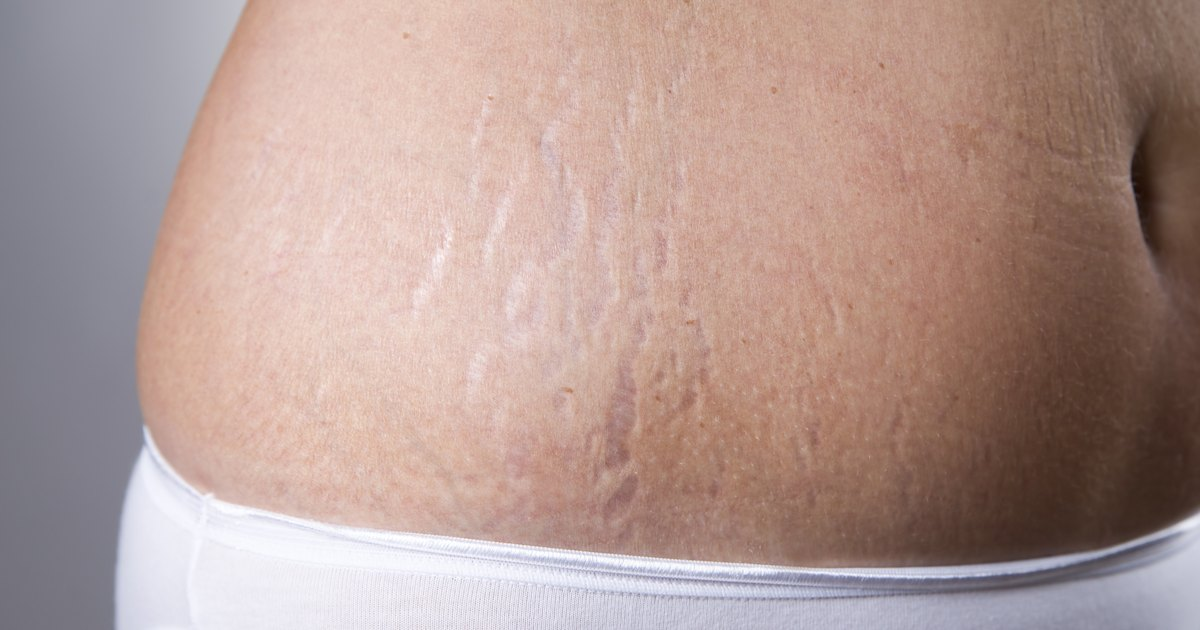 Can Toning Up Your Body Get Rid of Stretch Marks ...