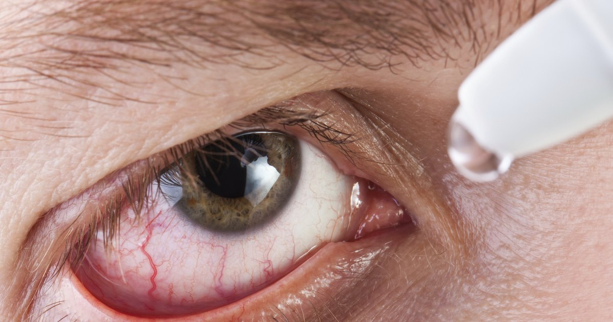 Accutane Side Effects & the Eyes | LIVESTRONG.COM