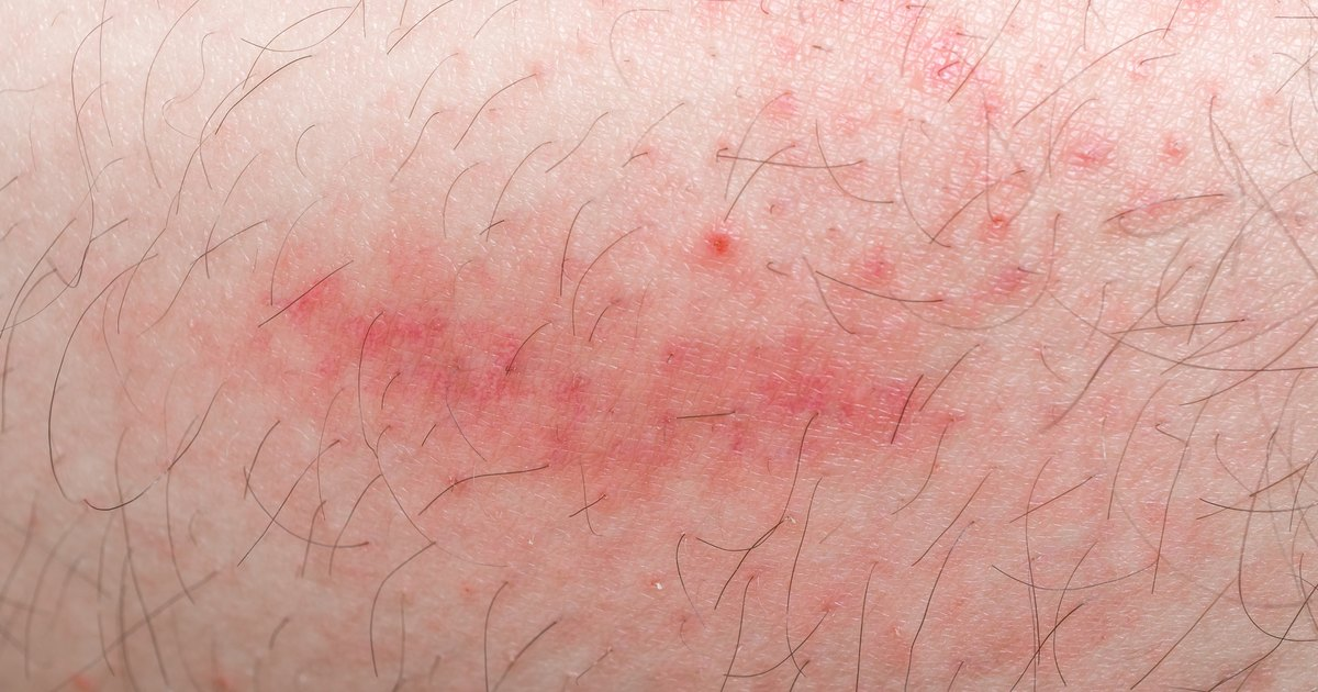 how to get rid of allergic reaction rash on legs