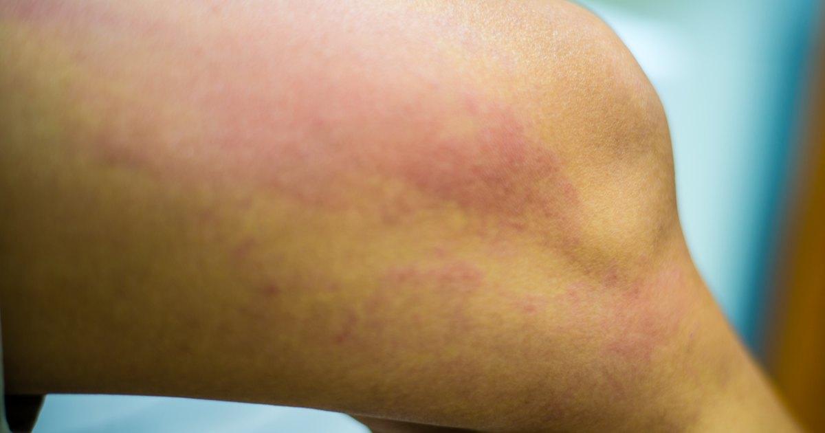 Wheat skin rash