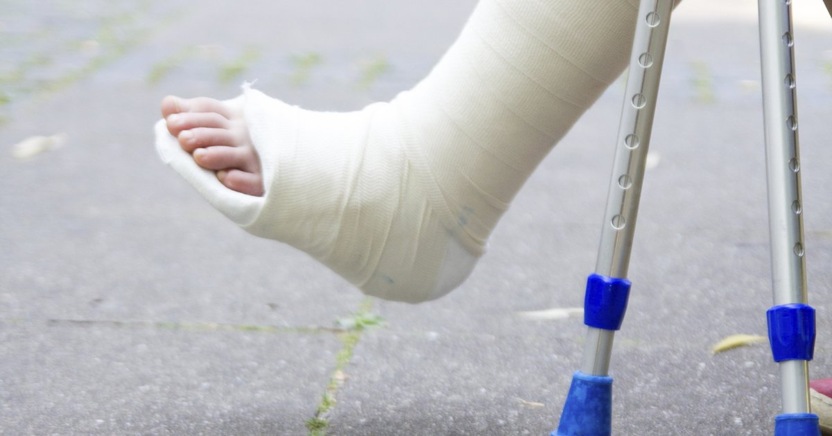 Exercises for an Ankle in a Cast | LIVESTRONG.COM