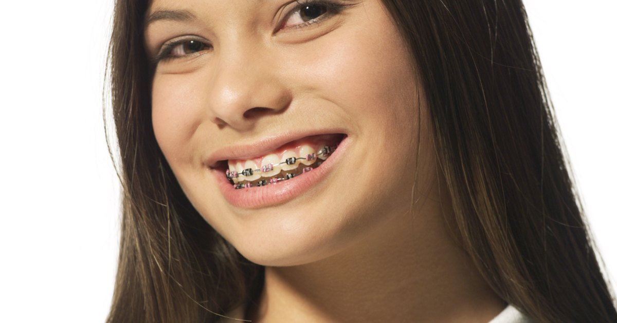 What Can I Eat and Drink With Braces? | LIVESTRONG.COM
