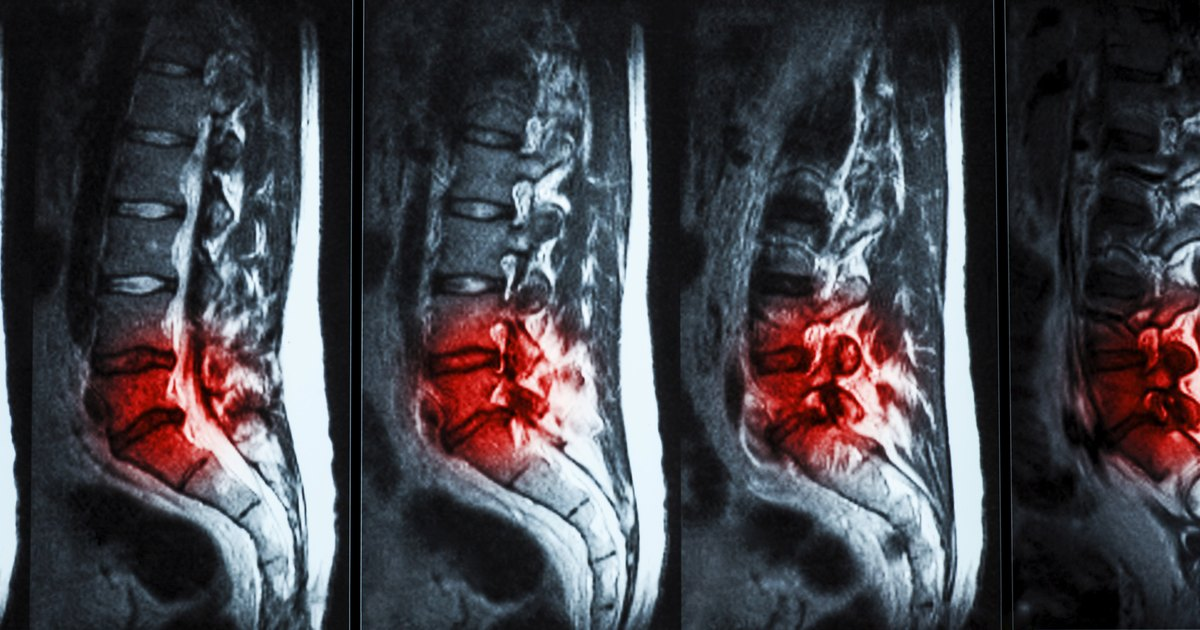 herniated disks essay Of lbp especially in individuals with a herniated disc  in summary, whereas  most episodes of  two-thirds of herniated lumbar discs undergo.