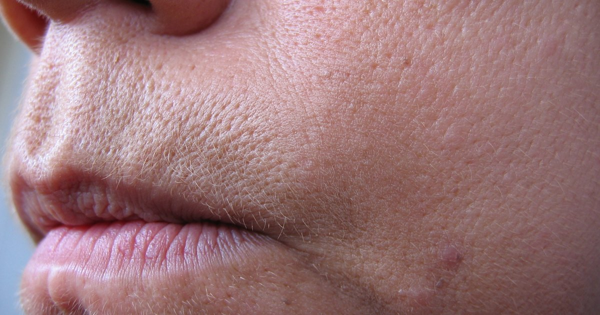 Solutions for Large Pores   LIVESTRONG.COM