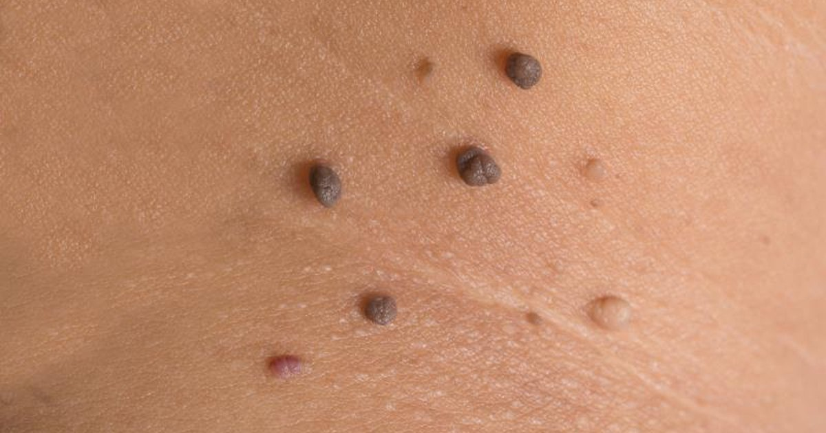 100+ Can Normal Moles Be Black – yasminroohi