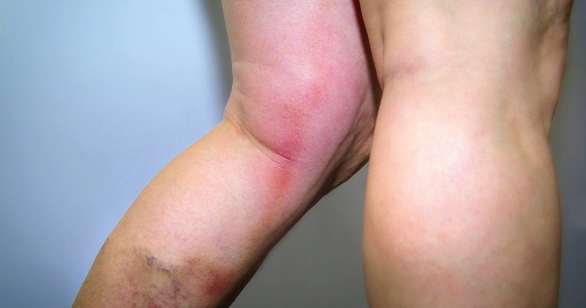 Causes Of Only One Lower Leg Swelling With Pain Livestrong
