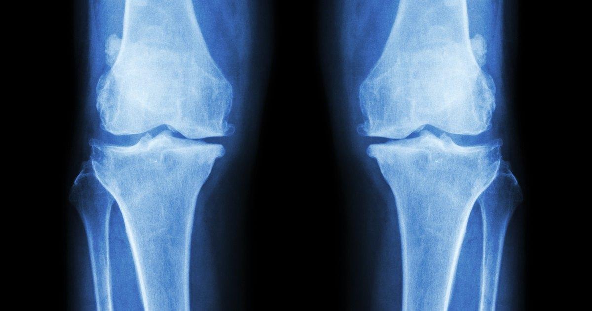 Top Bone Diseases | LIVESTRONG.COM