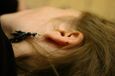 Pierced Ear Infections