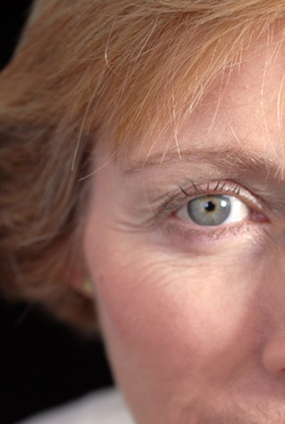 Creams to Help Sagging of Upper Eyelid
