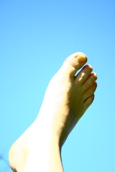 How to Kill Toe Nail Fungus