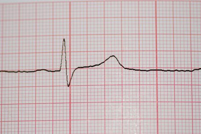 Refractory period begins after QRS spike through T wave.