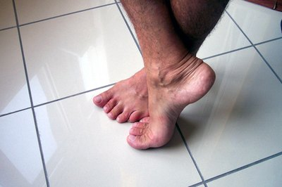 Early Signs of Dry Gangrene
