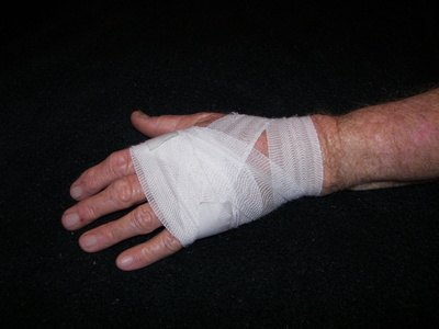 How to Wrap a Sprained Hand in an ACE Bandage