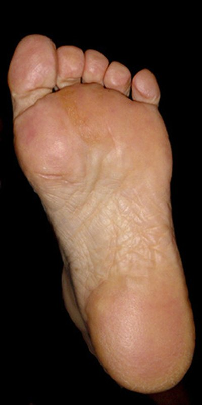 Check the feet for cracks in the skin.