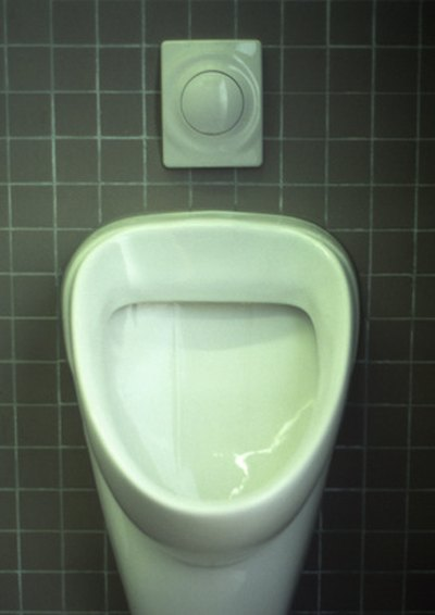 Causes of Frequent Urination in Men