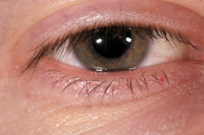 A white ring around the outer edge of the iris may be a sign of arteriosclerosis or other cardiovascular problems.