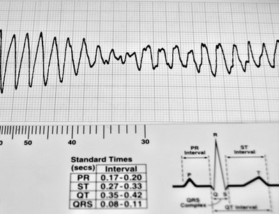 Dangerous ventricular arrhythmias result from low potassium.