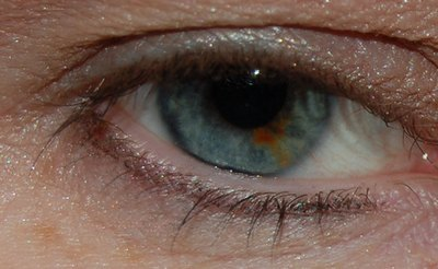 Dark Spots on the White of the Eye
