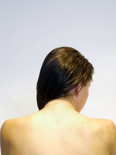 What Are the Causes of Back & Chest Acne?