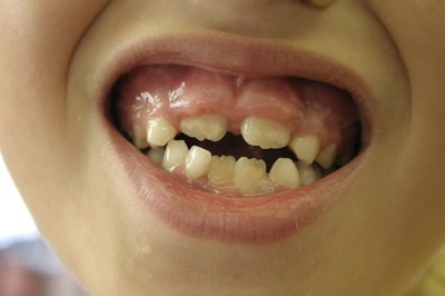 What Vitamin Deficiencies Cause Swollen Gums?