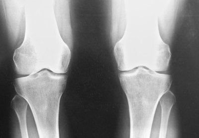 What Are the Treatments for Knee Joint Space Narrowing?