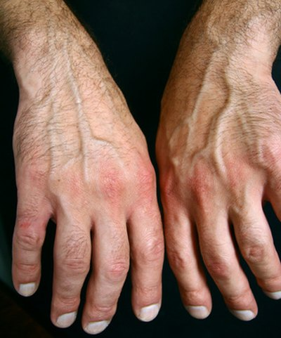 What Causes Arthritis Flare-Ups?