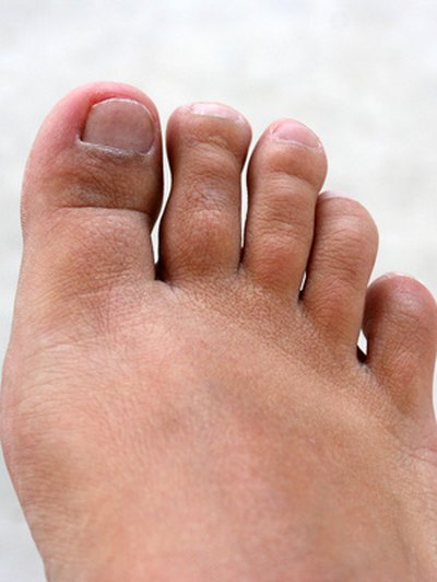 How to Decrease the Swelling With an Infected Toe