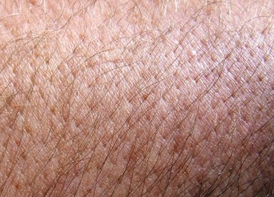 What Causes Body Hair Loss?