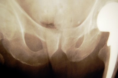 What Are the Treatments for Hip Pain After a Fall?