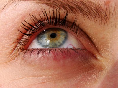 Dermatologist Removal of Dark Circles Around the Eye