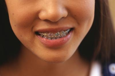 Tooth Braces And Pain Livestrong Com