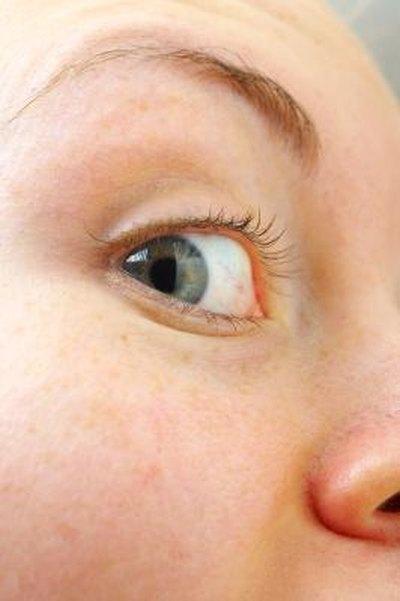 Best White Bump Inside Eyelid Rim – yasminroohi