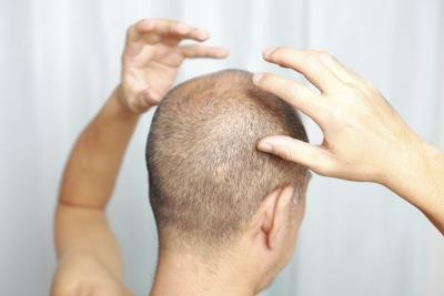 Electricals,Hair Loss,Healthy & Wellbeing,Vitamins & supplements,article Healthy