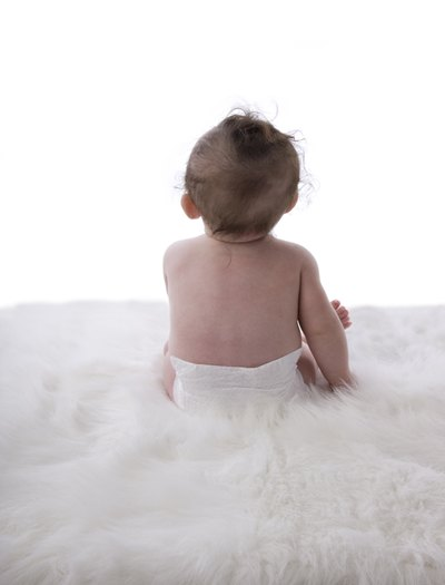 What Can Help Fade Away Scars on Babies?