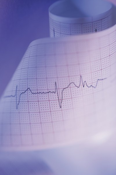 Does Low Potassium Cause EKGs to Change?