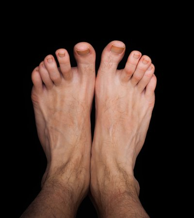 Thick Toenails Not Fungus