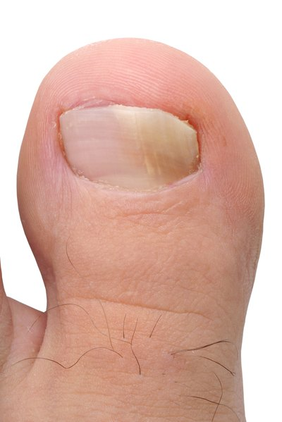 How To Use Tea Tree Oil Treat Fungal Nail Infection